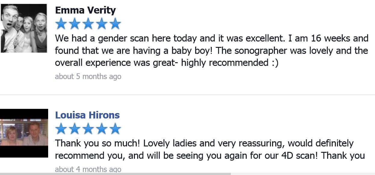 4D Baby scan, Gender scan, Pregnancy scan, Ultrasound scan  Berkshire
